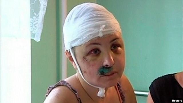 Rape victim Iryna Krashkova speaks to reporters in a hospital ward in Mykolayiv.