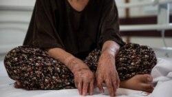 بخاری نفتی از رنج دختران صورتسوخته شینآباد چه میداند؟