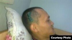 Заключенный Искандер Тюгельбаев лежит в тюремной лечебнице после полученной травмы головы.