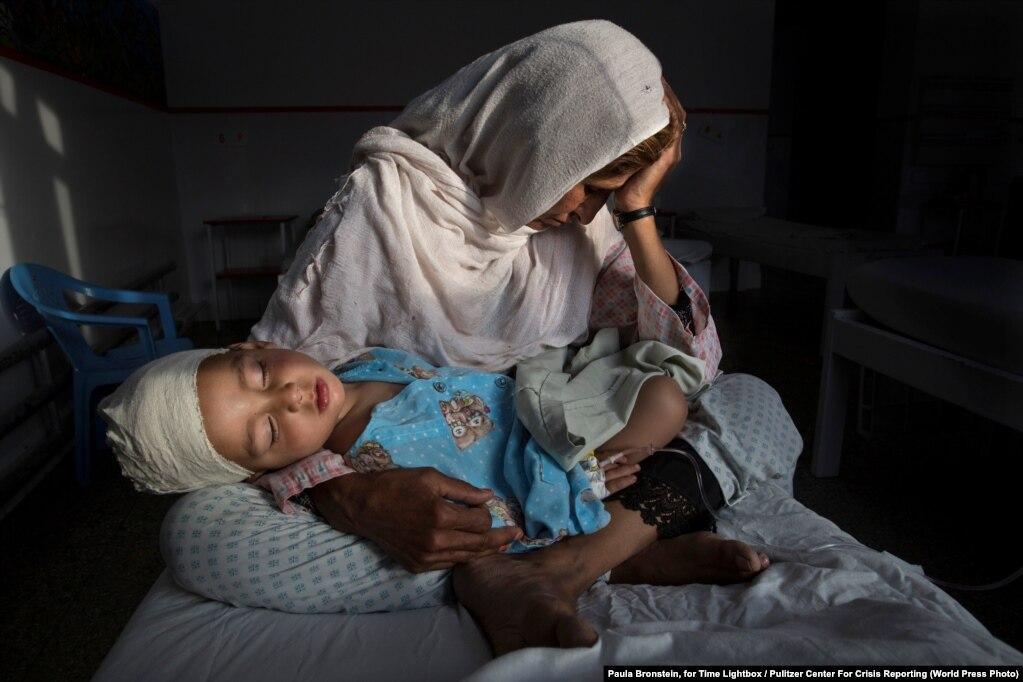 Në një spital në Kabul, Najiba mban në duar nipin e saj dy vjeçar Shabir, i cili është plagosur nga shpërthimi i një bombe.