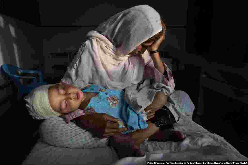At a hospital in Kabul, Najiba holds her two-year-old nephew Shabir who was injured from a bomb blast on March 29, 2016. Daily Life -- First Prize, Singles (Paula Bronstein, for Time Lightbox/Pulitzer Center For Crisis Reporting)
