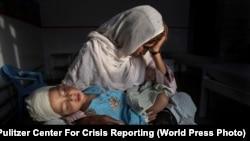 آرشیف، طفلی که در اثر تشدید خشونت ها در افغانستان زخمی شده در یک شفاخانه زیر درمان قرار دارد.