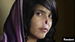 """Aisha, who appeared on the cover of """"Time"""" magazine in 2010, was not the last Afghan woman to be so disfigured."""