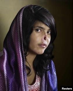 Фото афганской девушки Айши на первой странице журнала Time в 2010 году.