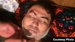 Родственники Муродиллы Омонова сомневаются в том, что он умер от сердечного приступа, так как после выдачи его тела они заметили, что правая бровь молодого предпринимателя была разбита в кровь.
