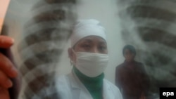 Дәрігер науқас өкпесінің рентген суретін қарап отыр. (Көрнекі сурет.)