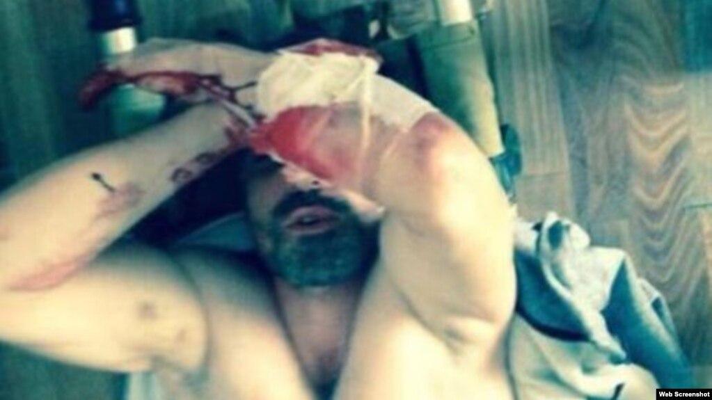 Житель Татарстана, ослепший после пыток в полиции, обратился в ЕСПЧ
