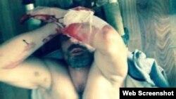 Житель дагестанского села Рутул Аким Кулиев порезал себя, не выдержав пыток