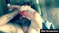 Один из задержанных в Рутуле Аким Кулиев ранее порезал себя, не выдержав пыток сотрудниками ЦПЭ. Это вызвало общественный резонанс. В связи с этим Кулиев был помещен под домашний арест