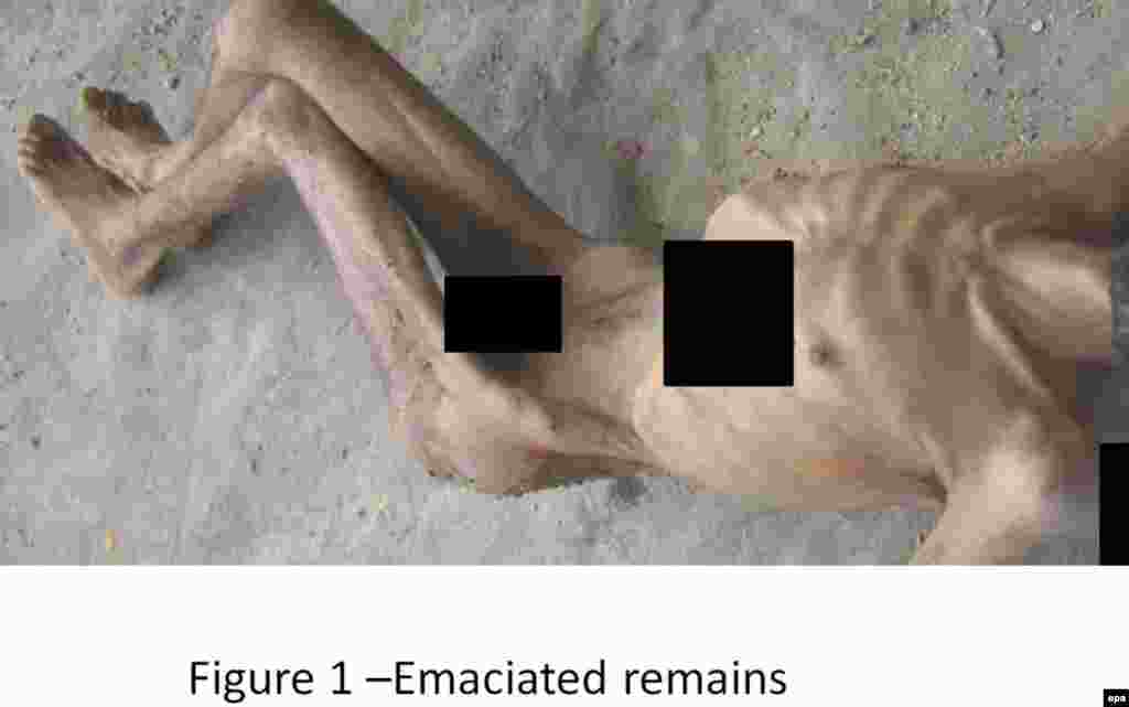 An undated photograph of an emaciated man made available by Carter-Ruck solicitors, the legal team that says it verified the authenticity of the images.