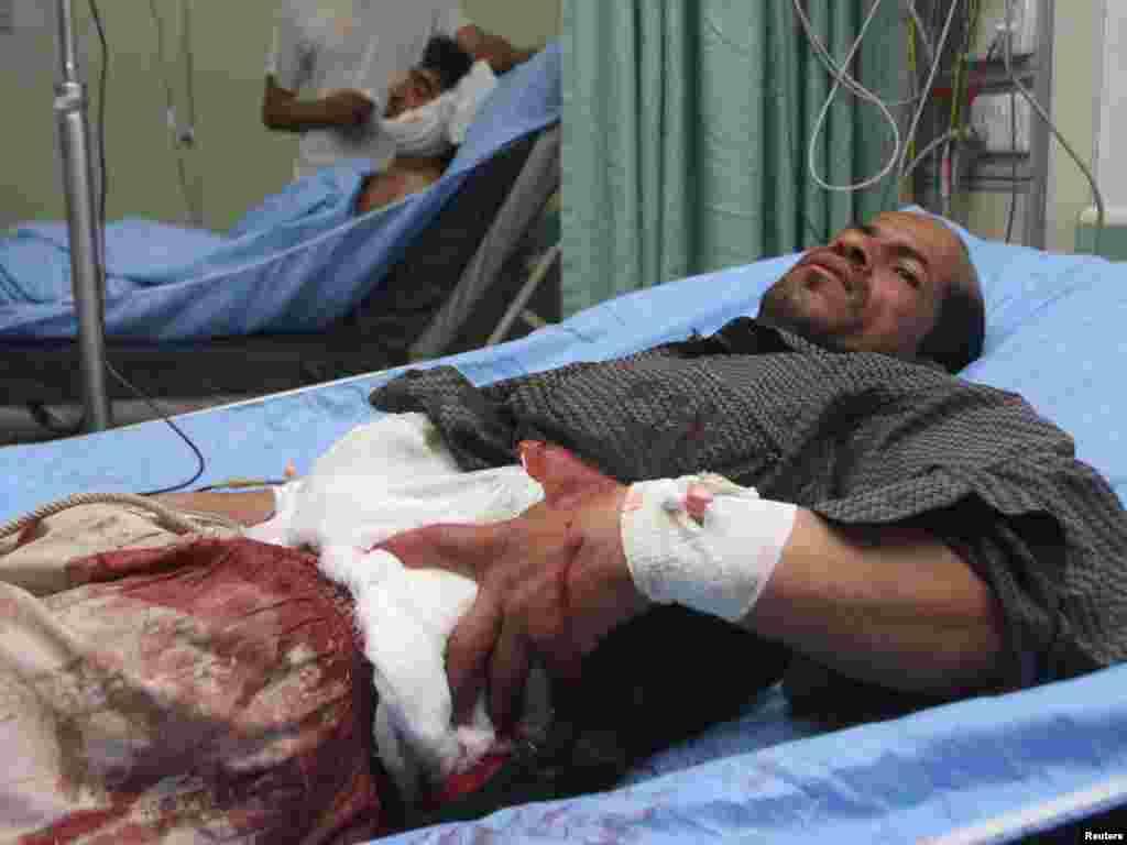 Ирак: Раненый мужчина лежит в больнице Фалуджи.