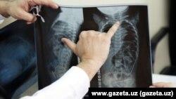 Рентгеновский снимок, сделанный 11-месячному младенцу, в теле которого обнаружили 16 иголок.