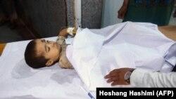 Heratda xəstəxanada yaralı əfqan uşaq