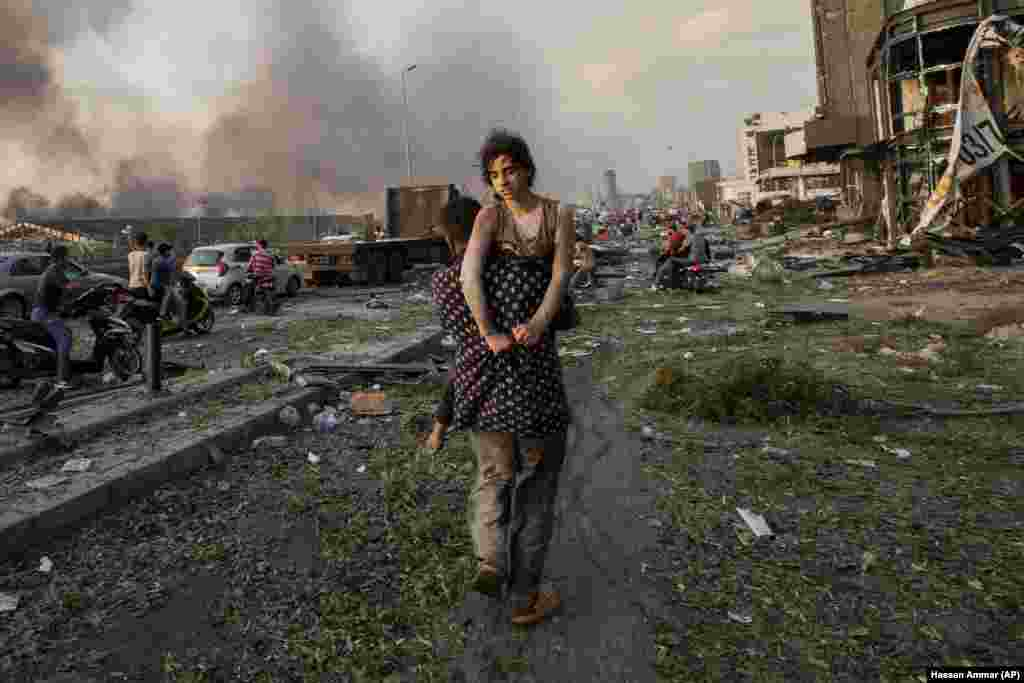 11-летняя Хода Кинно эвакуирована своим дядей Мустафой 4 августа 2020 года, вскоре после сильного взрыва в порту в Бейруте, Ливан. Семья Кинно из сирийского региона Алеппо пострадала от взрыва – Хода получила перелом шеи и другие травмы, а ее 15-летняя сестра Седра погибла
