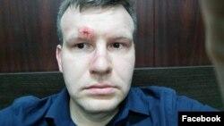 Николая Кавказского избили в центре Москвы. Фотография с его страницы в Facebook