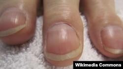 ناخنهای چماقی