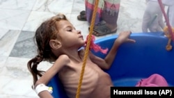 YEMEN -- A severely malnourished girl is weighed at the Aslam Health Center in Hajjah, August 25, 2018