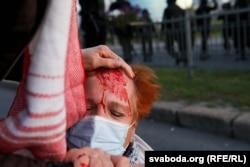 Ribuan orang Belarusia ditahan atau terluka setelah polisi anti huru hara secara brutal menindak protes anti-pemerintah setelah pemilihan presiden 9 Agustus.