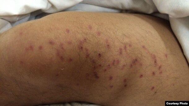 Следы пыток на теле Венера Мардамшина. Фотография предоставлена Комитетом по предотвращению пыток