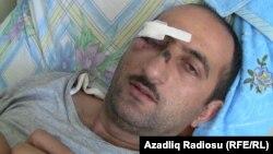 Идрак Аббасов, азербайджанский журналист, в больнице. Баку, 19 апреля 2012 года.