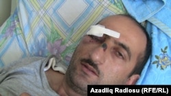 Azerbaijani journalist Idrak Abbasov recovers from his beating in a Baku hospital.