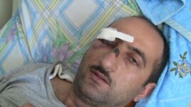 Azerbaijan -- Idrak Abbasov, a Zerkalo correspondent, was hospitalized in Baku yesterday with a concussion and injuries.  19Apr2012