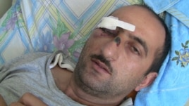 Journalist Idrak Abbasov was beaten by state security agents in April.