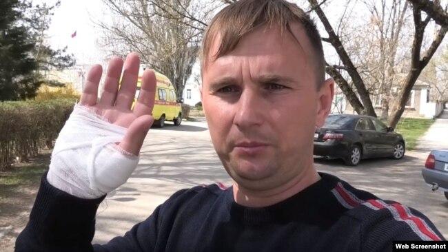 Пострадавший активист из Нижнегорского района Александр Тарасенко