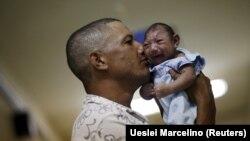 Beba oboljela od mikrocefalije, januar 2016.