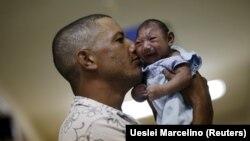 Dijete oboljelo od mikrocefalije