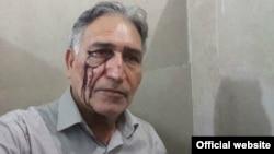 محمد نوریزاد پس از مضروب شدن توسط نیروهای امنیتی