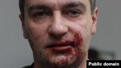 Побитий журналіст Громадського телебачення Дмитро Гнап, Київ, 29 листопада 2013 року