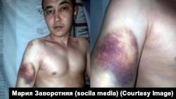 Эмилбек Кимсанов демонстрирует следы, полученные, по словам родственников, в результате избиений в СИЗО