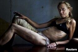 Фотография наркоманки, жительницы города Кривой Рог. Иллюстративное фото.