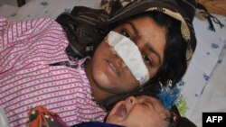 Reza Gul, 20, lies on a bed with her baby as she receives treatment at a hospital in the northern province of Faryab after her husband cut off her nose.