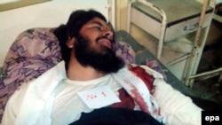 Пактика уәлаятында волейбол матчы кезінде болған жарылыстан жараланған тұрғын ауруханада жатыр. Ауғанстан, 23 қараша 2014 жыл.