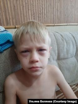 Кирилл во время недавнего приступа