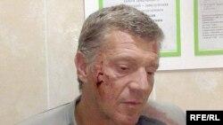 Алег Сурган быў дастаўлены ў суд пабітым