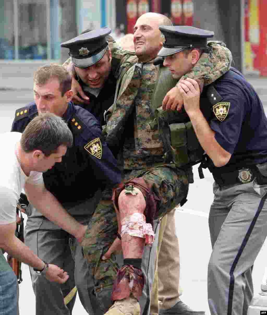 Полицейские оказывают помощь грузинскому солдату, раненому в бою с южноосетинскими сепаратистами в Гори. 8 августа 2008 года.