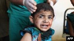 Ребенок, доставленный в больницу из района обстрела в сирийской провинции Идлиб. 19 апреля 2016 года.
