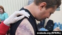 Освободен от следствения арест в Минск показва следите от насилие по ръката си.