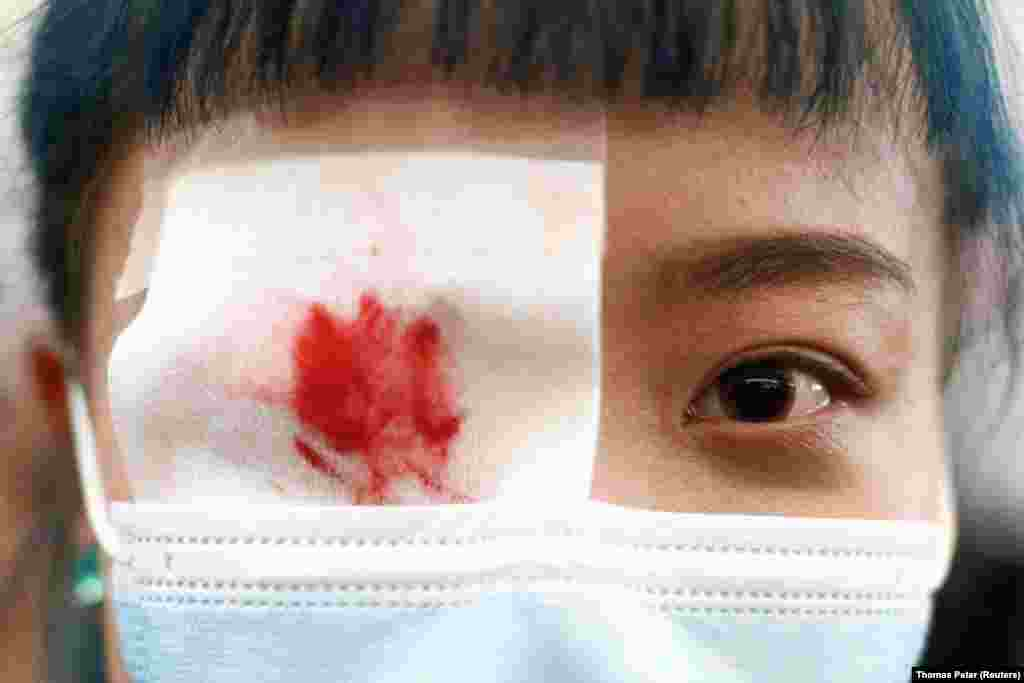 U znak solidarnosti sa demonstrantkinjom koja je, kako izveštavaju lokalni mediji, teže povređena kada je gumenim metkom pogođena u oko, mnogi demonstranti preko oka nose okrvavljeni povez