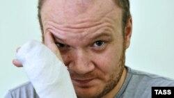 Олег Кашин спустя 2 месяца после нападения