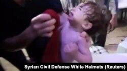 Ребенок, пострадавший во время химической атаки в сирийском городе Дума, кадр из видео