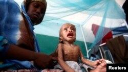 Pothranjeno dijetu u Somaliji
