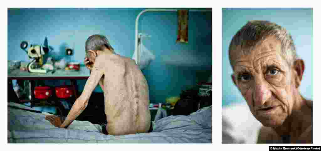Photographer Maxim Dondyuk of Ukraine was selected in the Portraiture category for this shot of Michael, 63, who was being treated for tuberculosis in a hospital in Kherson.
