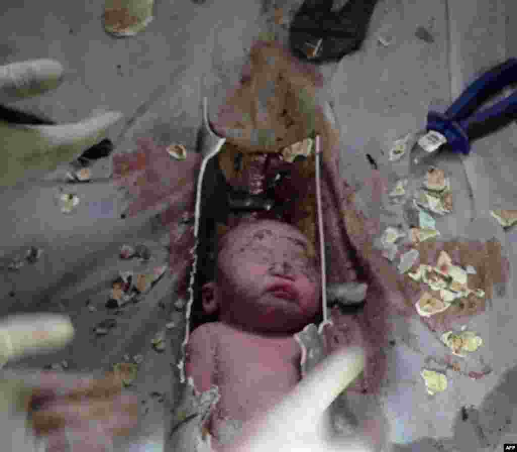 This screen shot shows Chinese rescue workers breaking away bits of a pipe to remove a newborn baby boy stuck for two to three hours inside a sewage pipe in an apartment building in the city of Jinhua in the eastern province of Zhejiang. The baby is healthy. The mother, who says she gave birth unexpectedly, is in serious condition due to complications. (AFP)