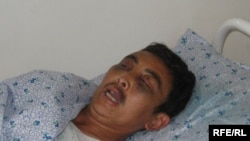 Almaz Tashiev, seen here recovering in hospital, later died from his injuries.