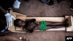 کودکی گرسنه در کاسای کنگو . ۲۶ اکتبر ۲۰۱۷