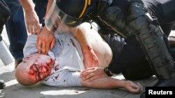 Один из пострадавших во время массовой драки английских и российских фанантов, Марсель, 11 июня 2015